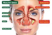 Sinus Remedy