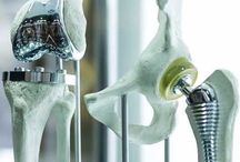 Next Generation Implants Market