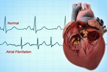 Atrial Fibrillation Treatment / Increase your life expectancy and take care of your heart now with the help of a herbal formula known as Rillical that can kick away Atrial Fibrillation within 2 to 3 months.