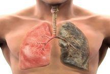 pneumopathie
