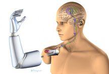 Bionic pins