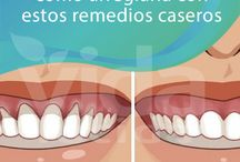 retracción dental