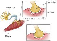 Myesthenia gravis