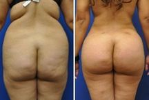 Brazilian Butt Lift / Brazilian Butt Lift eli BBL on toimenpide, jossa pakaroiden muotoa korjataan rasvansiirtotekniikalla.