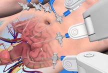 Urologie / Urologie Video