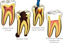 Root Canal Treatment in New Delhi / Root canal therapy is a kind of preparation, which is an important step in endodontic treatment, with the aim of cleaning debris and disinfects the root canal system. In the root canal clinic, a shape is created over which a sealant is applied to protect from reinfection and leave sufficient tooth structure for the placement of a definite final restoration.