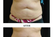 CoolSculpting- Fat Reduction / CoolSculpting by ZELTIQ™ is a breakthrough, non-invasive technology that freezes away stubborn fat. CoolSculpting gently targets and cools unwanted fat cells in the selected area to induce a noticeable, natural-looking reduction in fat bulges.  Each CoolSculpting procedure results in an average 15-40 %  reduction of fat in the treated area.    Unlike most other methods of fat reduction, CoolSculpting involves no needles, surgery, or downtime. www.TheMedicalSpa.com