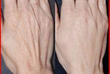 Mãos sem manchas