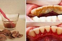 Diş tartarları