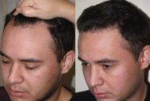 Hair Transplants: Before & After