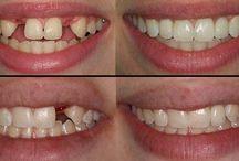 Dental Implants Pune