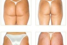 Endermologie Before and After Photos