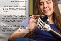 Prosthetic Inspiration / Inspiration featuring Advanced Arm Dynamics patients