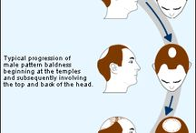 Hair Loss / I offer non-surgical hair replacement solutions.  Swim, shower, and live your life.