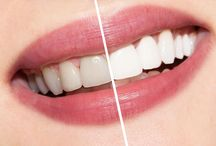 Teeth Whitening / Problem: Stained Dull Teeth. Solution: Teeth Whitening Procedure!