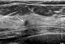 Ultrasound Breast / Breast Sonography Resources