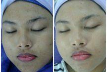 traetment facial tamaracskin