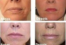 botox facial