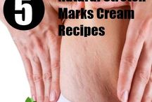 Stretch Marks