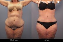 Tummy Tuck / Tummy Tuck before and after photos