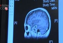 Maltraitance : des stygmates dans le cerveau