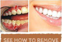 consejos dentales