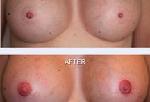 Areola Reconstruction / See the Amazing work that MicroArt does on Areolas