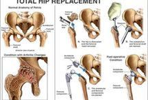 Joint Replacements
