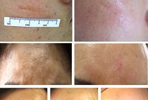 Treatment Feedback / All picture is get from our customers to show the treatment feedback.