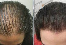 recetas para la caída del cabello