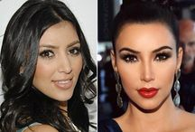 Celebrity Nose Jobs / Pictures of celebrities before and after nose jobs! Find good nose jobs, bad nose jobs and everything in between!