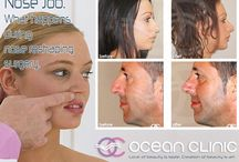 Rhinoplasty Before After Nose Reshaping / Well performed Rhinoplasty Before And After Photo Gallery. Good Nose Job results by Dr Kaye Ocean Clinic Marbella.