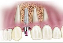 SINGLE OR MULTI UNIT IMPLANTS / Single Tooth Replacement: Fixed Partial Denture Versus Single Tooth Implant