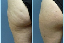 Cellulaze of DFW / Cellulaze is the first FDA approved one time treatment for Cellulite.