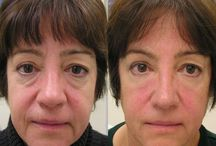Eradicate Marionette Smile Lines With Yoga Exercises For The Face