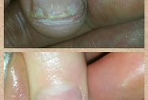 IBX Repair Treatment / For peeling, damaged nails, gives strengh IBX goes in the nail not on it