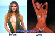 Heidi Klum Big Breast Size After Plastic Surgery and Breast Implant