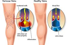Varicose Vein / Varicose veins are veins under the skin of the legs, which have become widened, bulging, and twisted. The most common symptoms of varicose veins are aching, discomfort and heaviness of the legs, which are usually worse at the end of the day. This board contains informative pins on varicose veins.