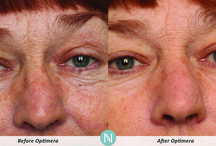 "Optimera - Before and After photos / Optimera users take their ""before"" and ""after"" pictures and submit them to us. / by Nerium International"