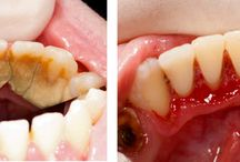 Dental Treatments Explained / Dental treatment advice