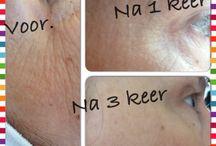 Micro dermabrasie / Resultaat na 3 behandelingen