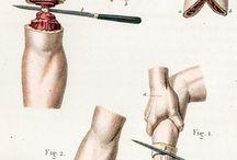 Ill_hirurgiczne