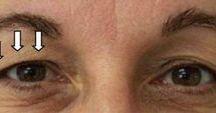 beaute yeux