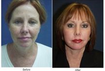 Dr.Freeman / Cosmetic Surgery - http://onlyfaces.com/