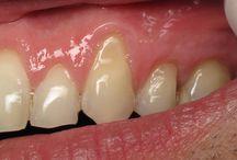 DİŞ ETLERİ HASTALIĞI VE DİŞLER / Diş eti hastalığına doğal çözümler