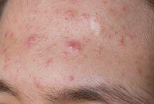 trt acné