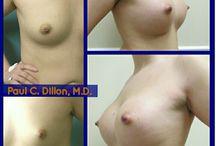 Breast / Breast Augmentation and Mastopexy (breast lift)
