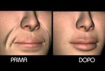 rimedi per le rughe intorno alla bocca
