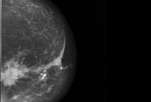 x-ray - Mammography / Make the diagnosis also in different languages.