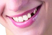 Eksik diş tedavisi nedir ?